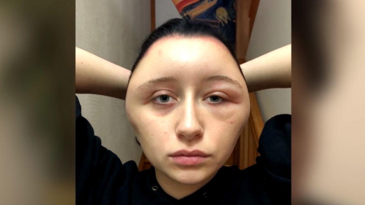 mujer sufrió deformación de su rostro tras tinturar su pelo