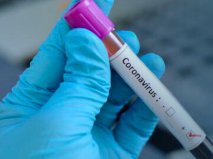 Casos Coronavirus
