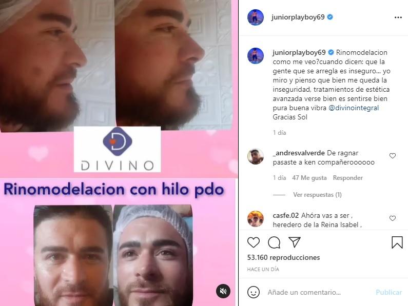 Junior Playboy Se Hizo Un Retoque En Su Nariz