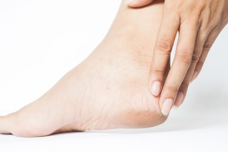 Woman Cracked Heels With White Background, Foot Healthy Concept